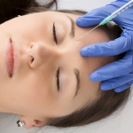 What You Need To Know About Allergan Botox